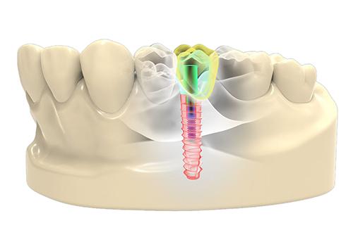 Дентальные имплантаты получат инновационное покрытие