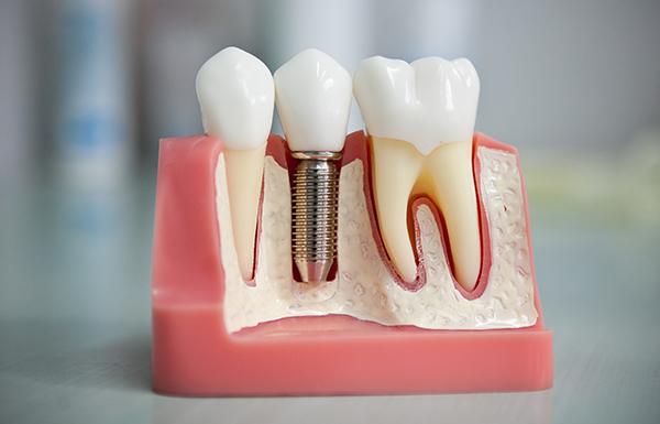 Всё об имплантации зубов