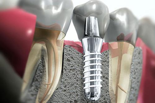 Nobel Biocare выпустила новые импланты для протезирования боковых зубов