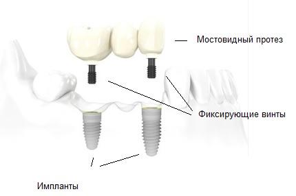 Мостовидные протезы на имплантах