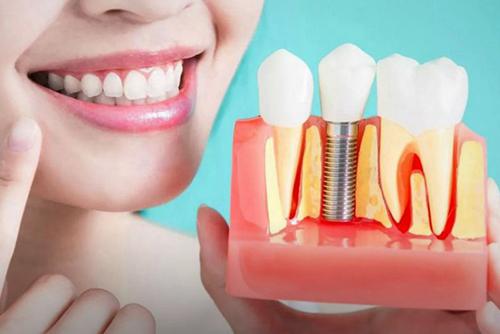 Плюсы и минусы имплантации зубов