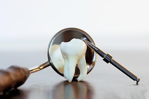7 дней, чтобы спасти Ваш зуб
