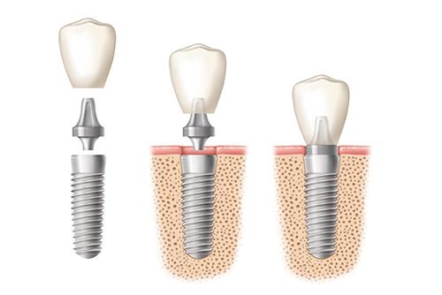 В результате исследований выяснилось, что пациенты неверно рассуждают о зубных имплантах