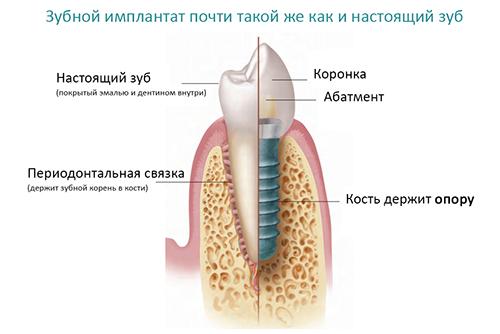 Имплантация зубов – мифы и реальность