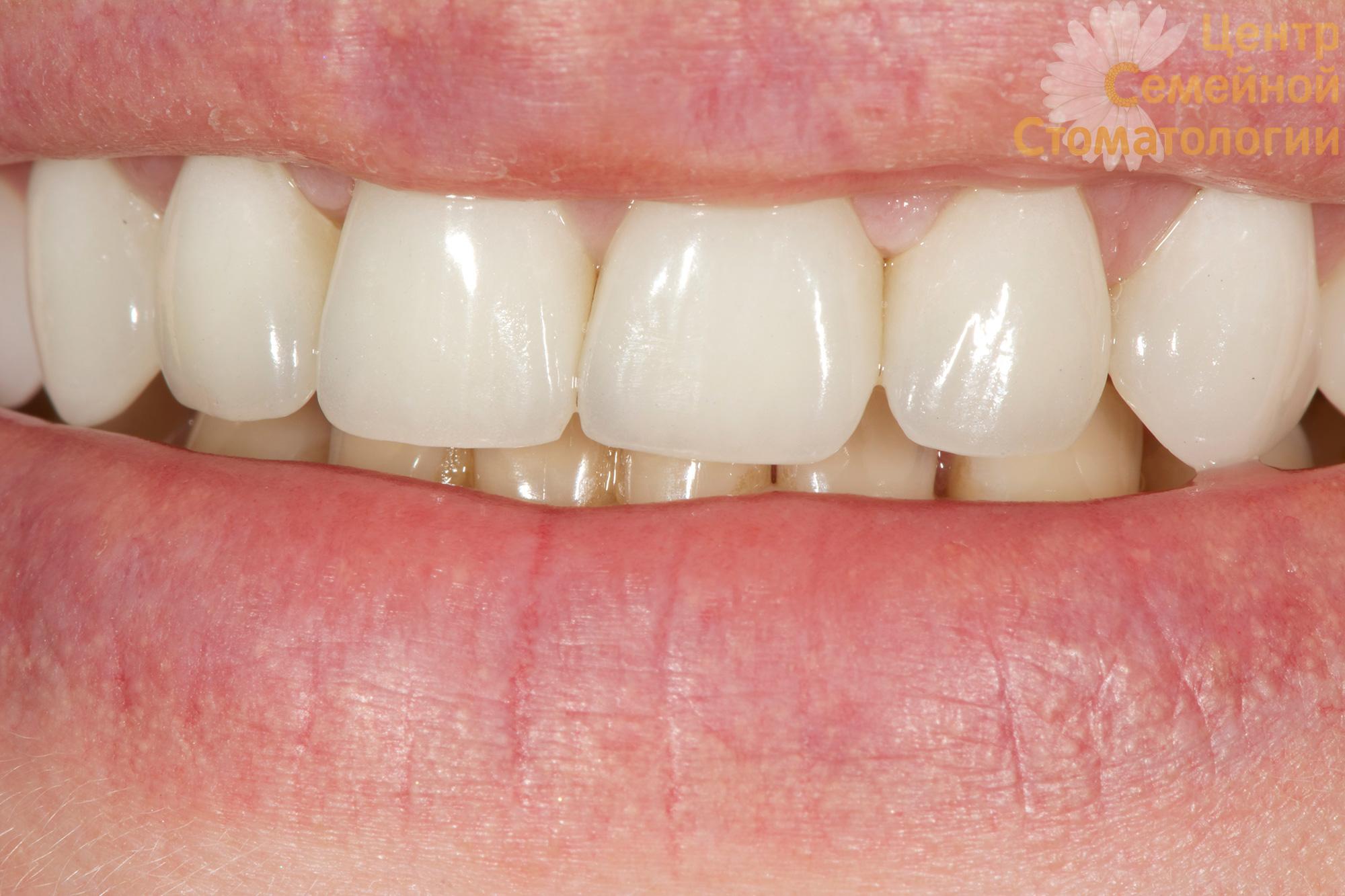Что такое зубные виниры и как их делают
