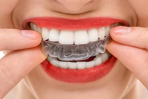 Капы для выравнивания зубов у взрослых