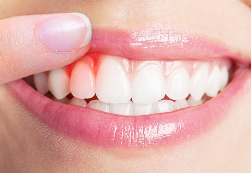 Киста на десне зуба что делать
