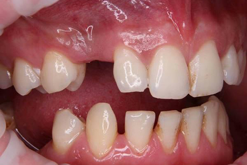 Адентия челюсти — полное и частичное отсутствие зубов