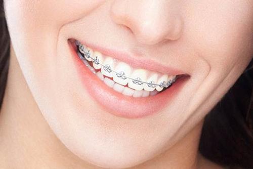 Исправление прикуса зубов