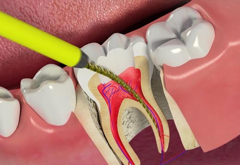 Депульпирование зуба – удаление зубного нерва