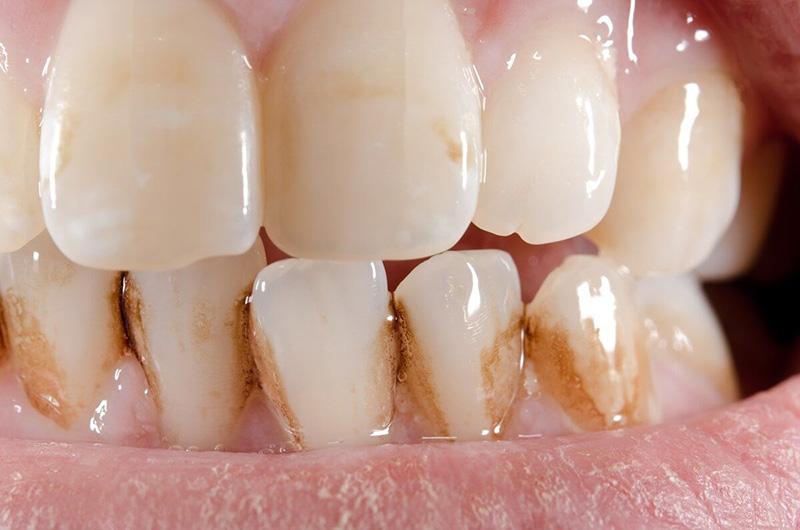 Заболевание эмали зубов