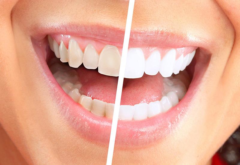 Какое отбеливание зубов лучше