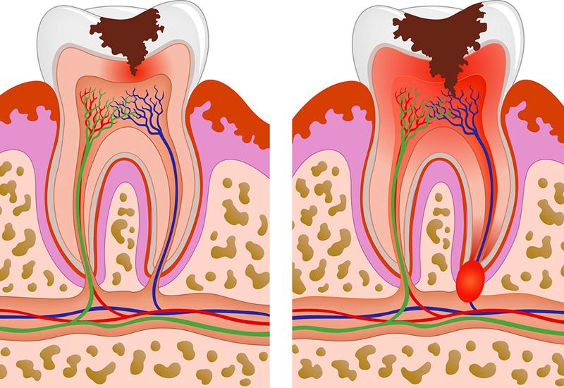 Абсцесс корня зуба - острое гнойное воспаление