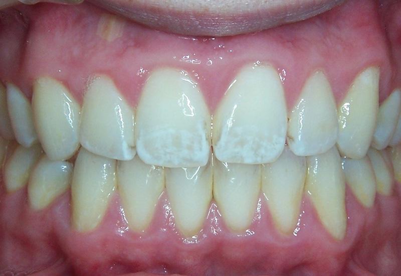 Флюороз зубов – симптомы и лечение