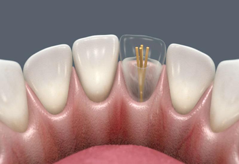 Виды зубных штифтов – что необходимо знать пациенту