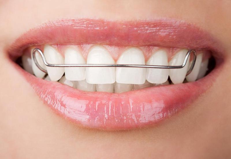 Виды пластинок для зубов