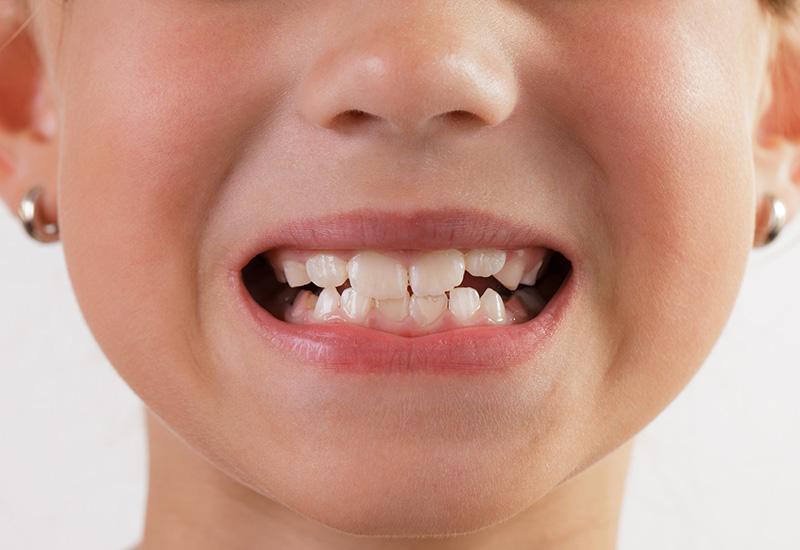 Коренные зубы у детей — порядок прорезывания