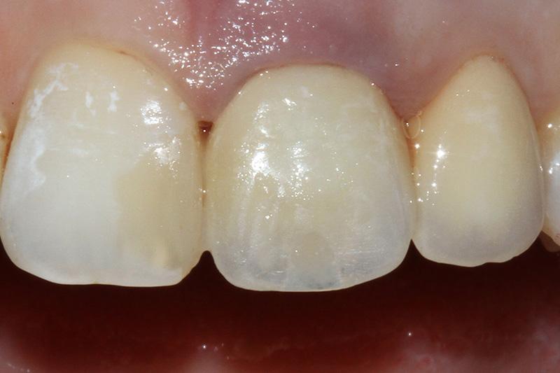 Что представляет собой зубная эмаль