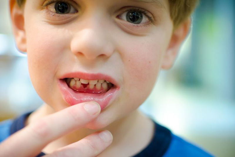 Причины гингивита у ребенка