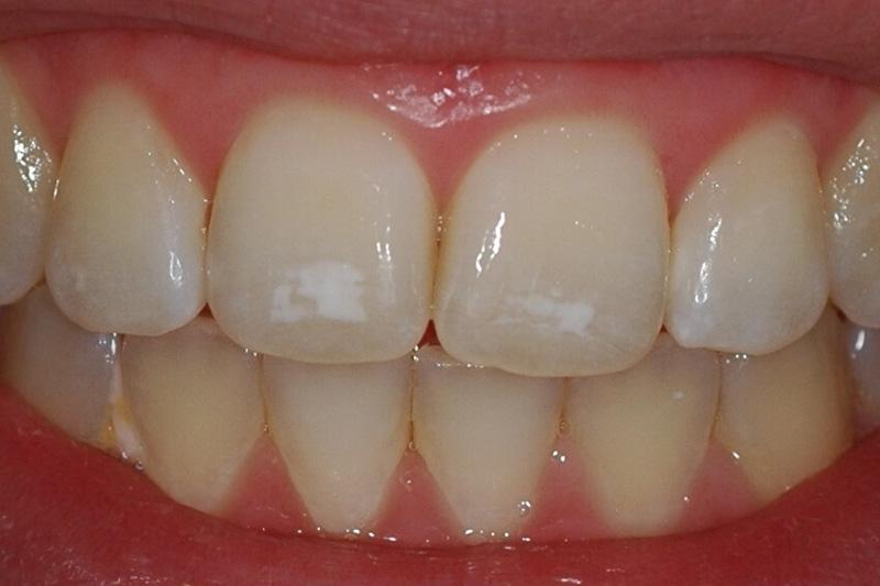 Почему появляются меловидные пятна на зубах