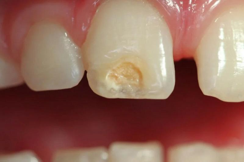 Гиперплазия эмали зубов у детей