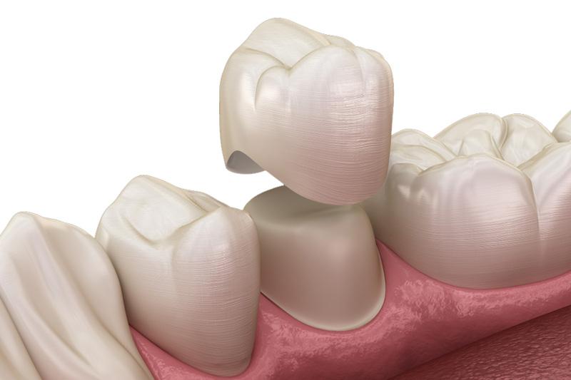 Болит зуб под коронкой что делать