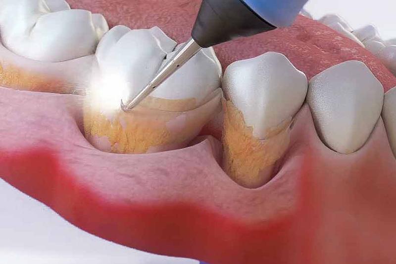 Зубной камень от чего появляется