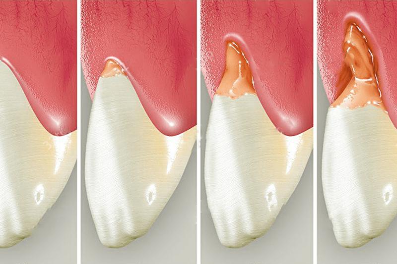 Причины клиновидного дефекта зубов