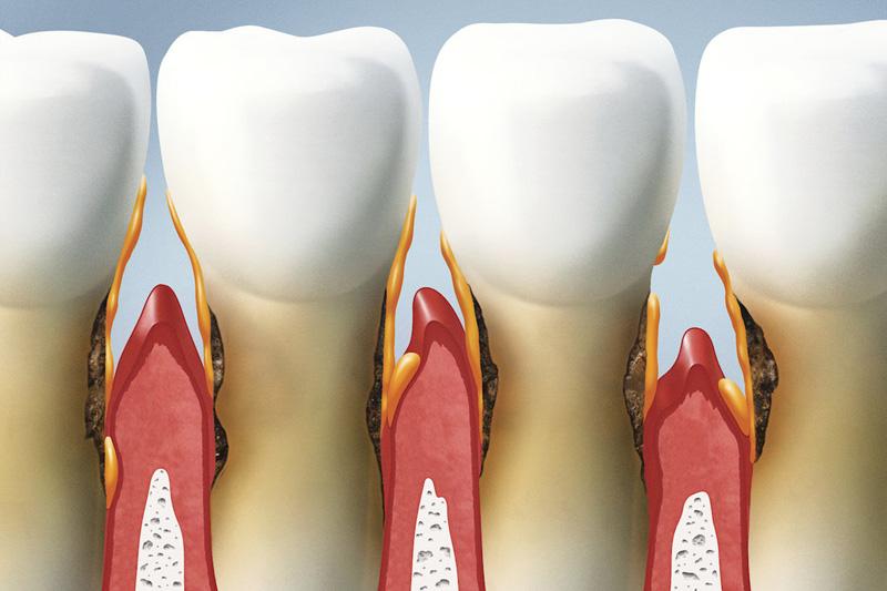 Лечение пародонтита зубов