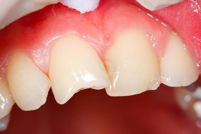 Что делать если откололся кусок зуба?