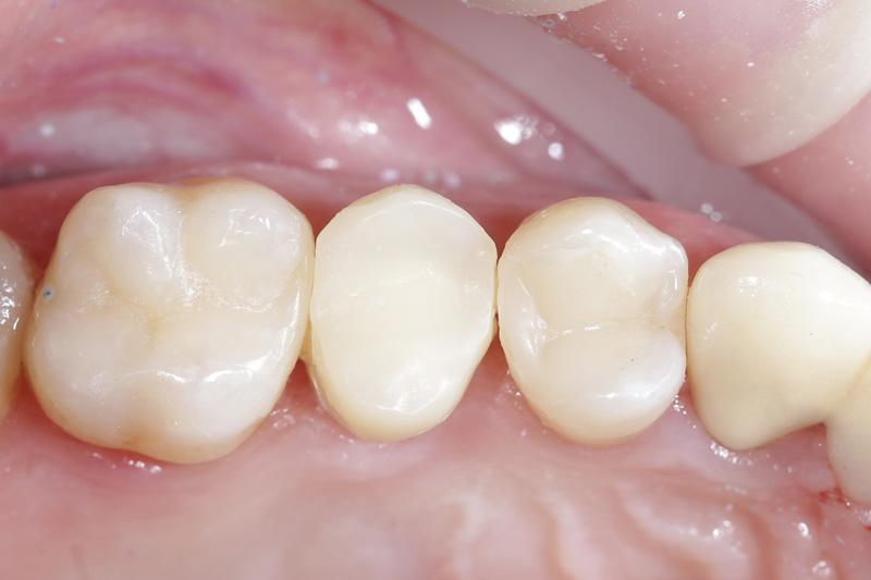 Современные методы восстановления зуба