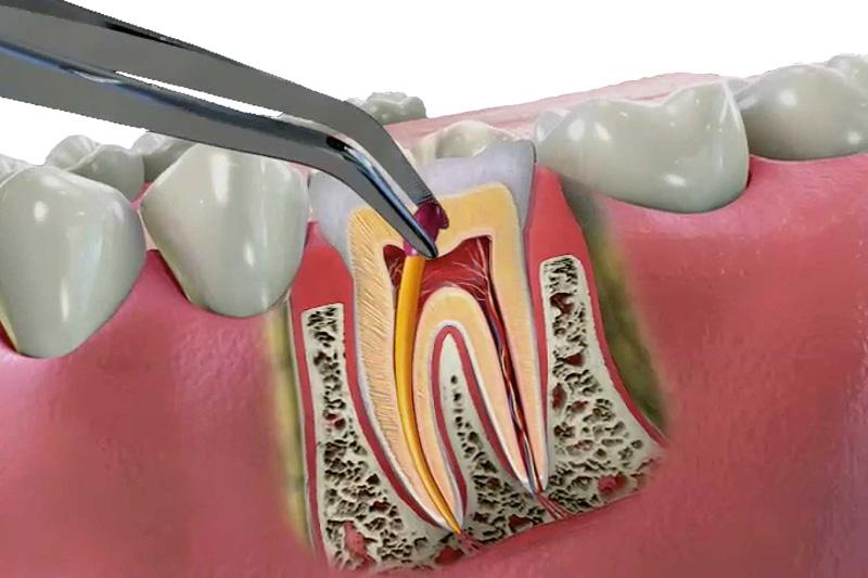 Что такое зубные каналы