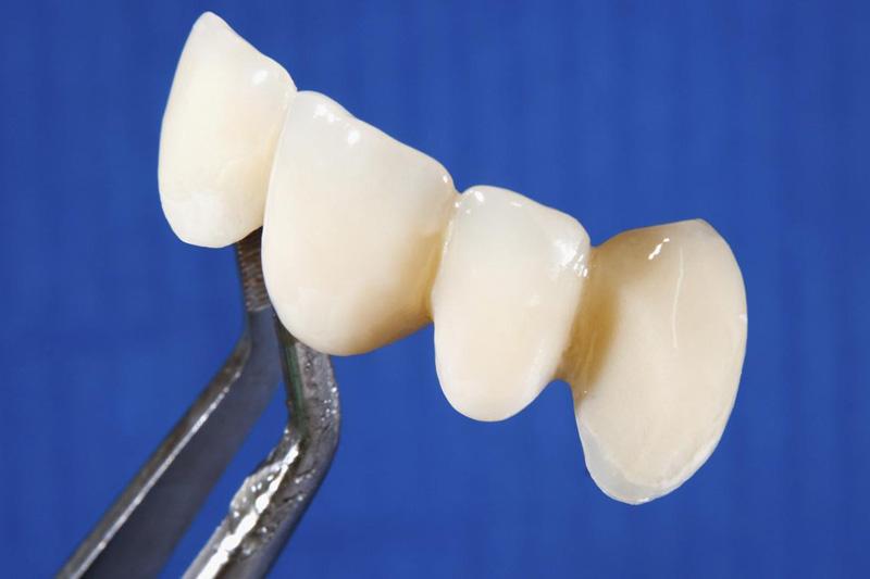 Слетел зубной мост что делать