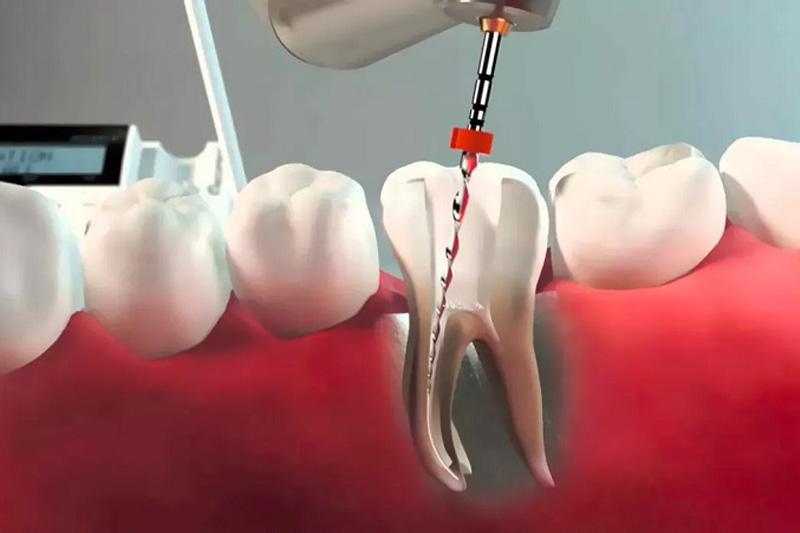 Эндодонтия зуба