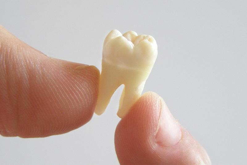 Сколько корней у коренного зуба