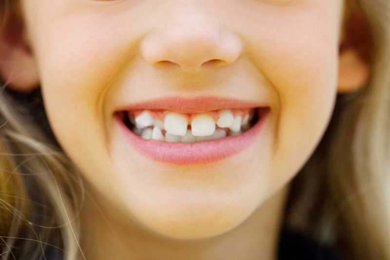 Что такое глазные зубы у ребенка