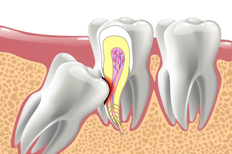 Какие симптомы когда растет зуб мудрости