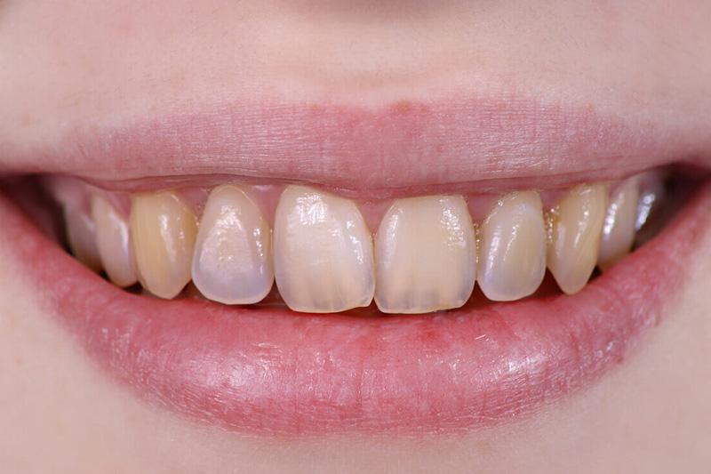 Лечение эрозии эмали зубов