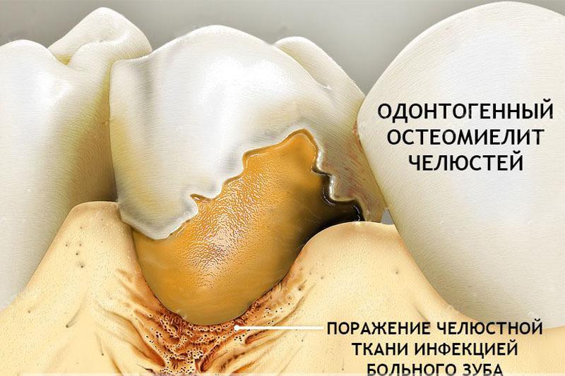 Формы остеомиелита челюсти