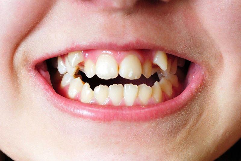 Скученность зубов причины
