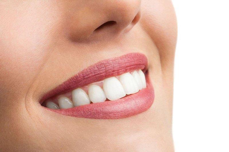 Что такое пигментация зубов
