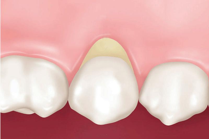 Некариозные поражения твердых тканей зубов лечить или не лечить