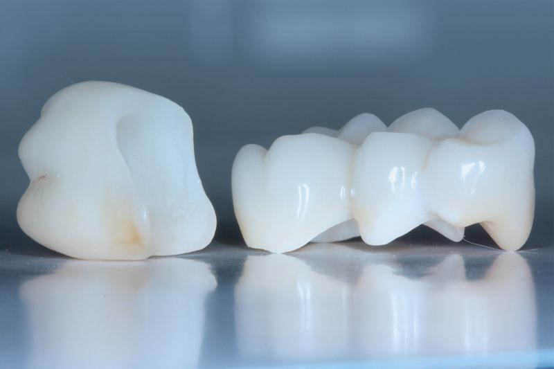 Эндокоронка - альтернатива лечения эндодонтически пораженных зубов