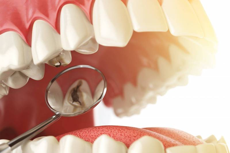 Разрушение зубов: причины и профилактика