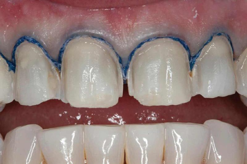 Биоразлагаемые зубные нити для лечения пародонтита