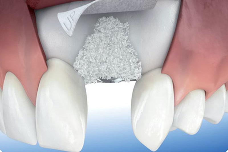 Имплантация с направленной костной регенерацией