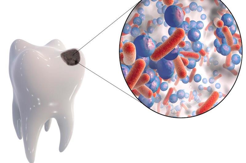 Бактерии, вызывающие кариес