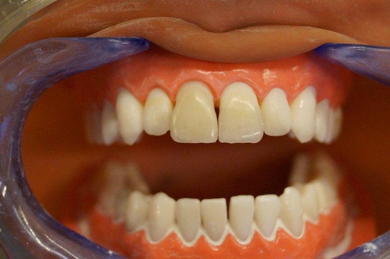 Прямая композитная реставрация фронтальных зубов
