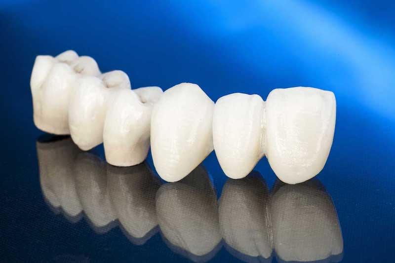 Безметалловая керамика на зубы: белое золото в стоматологии