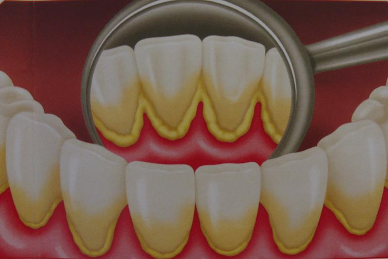 Виды зубных отложений